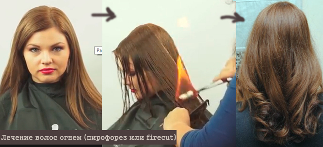 Лечение волос огнём цена